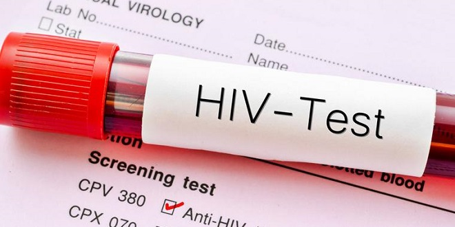 SIDA : 30% des malades ignorent au Maroc leur statut