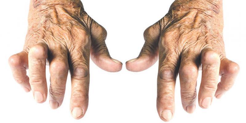 Polyarthrite rhumatoïde: Déformations, handicaps et drames sociaux