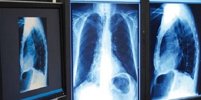 Officiel/ Un traitement antituberculeux déjà à l'origine de 5 décès